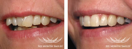 6 Month Smiles in Glasgow before and after