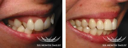 6 Month Smiles Glasgow dentist